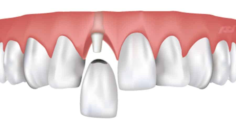 dental implants - Pittsburgh PA