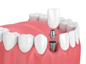 Common Reasons for Dental Implant Failure