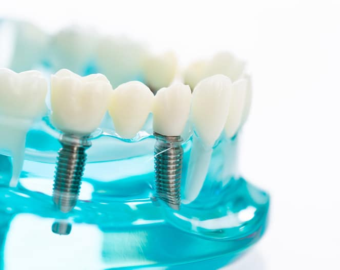 How South Hills Dental Arts Ensures that Your Smile Looks its Best after Implant Surgery